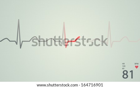 Schematic diagram of normal sinus rhythm for a human heart as seen on ECG. Red highlights on bright background. - stock photo