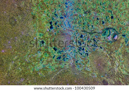 science medical anthropotomy physiology microscopic section of lymph gland tissue background - stock photo