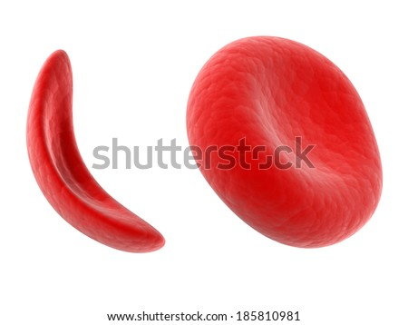 scientific illustration - sickle cell blood cell - stock photo