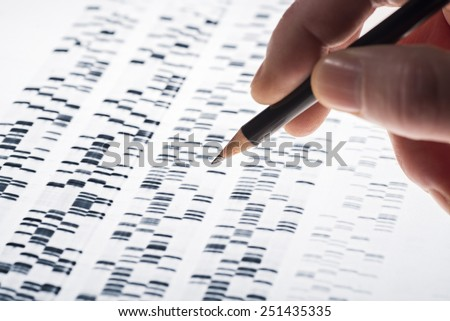 Scientists examined DNA gel that is used in genetics, medicine, biology, pharma research and forensics. - stock photo