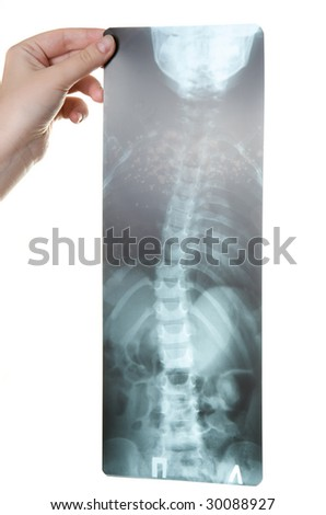 scoliosis roentgemogram isolated over white - stock photo