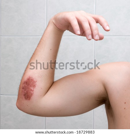 Scraped elbow - 5 days after inline skating accident. The wound is healing well, there is almost no inflammation. - stock photo