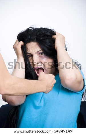 Screaming woman injured with bruise on face  sitting with hands on hair and being scared about her husband  fist - stock photo