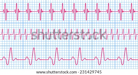Seamless pattern of the ekg cardiograms chart - stock photo