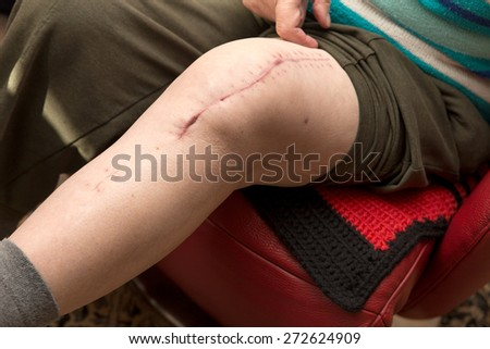 senior adult with scar on knee, after surgery with knee replacement