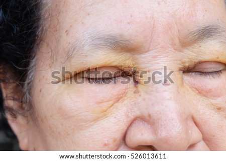 senior after eyelid surgery