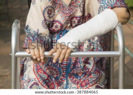 senior woman broken wrist using walker in backyard. - stock photo