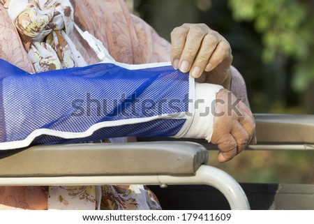 Senior woman with a broken arm on a plaster cast  - stock photo