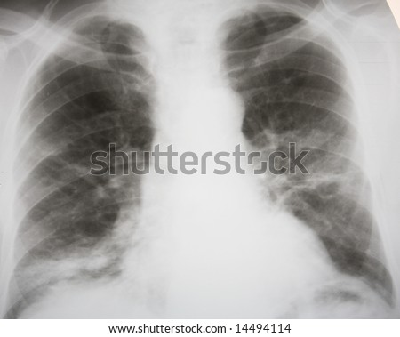 Septic double-sided pneumonia. 100% confirmed diagnosis - stock photo