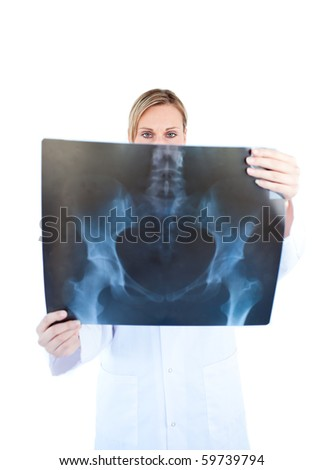 Serious female doctor hold ing a x-ray against a white background