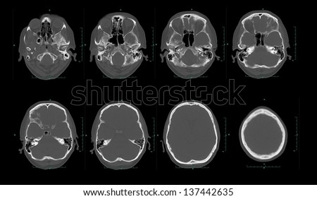 Set of imaging computed tomography ( CT ) of the head and brain - stock photo