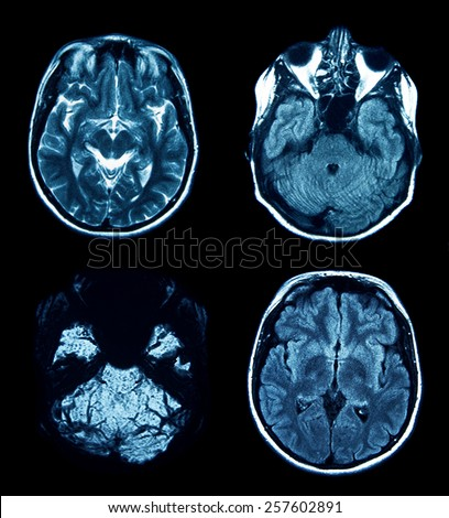 set of MRI scans on black - stock photo