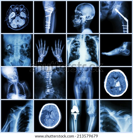 Set of X-ray multiple part of human,Multiple disease,orthopedic,surgery (Stroke,Bone fracture,Orthopedic operation,Kidney stone,Arthritis,Gout,Pulmonary tuberculosis,Heart disease,Scoliosis,etc) - stock photo