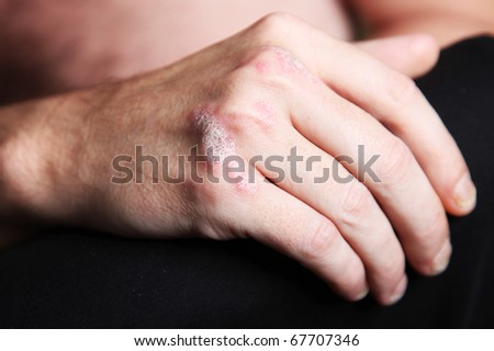 Severe  psoriasis on the hand - close-up - stock photo