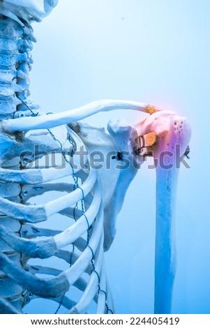 shoulder bone pain & inflammation - stock photo