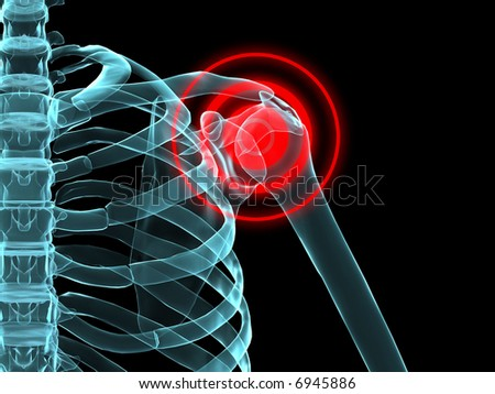 shoulder inflammation - stock photo