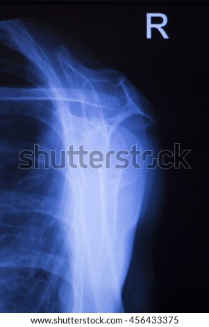 Shoulder joint injury xray traumatology and orthopedics test medical scan used to diagnose sports injuries in patient. - stock photo