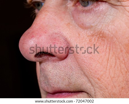 Side view of mature man's nose and upper lip with the eyes just visible - stock photo