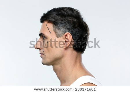 Side view portrait of a man marked with lines for plastic surgery - stock photo