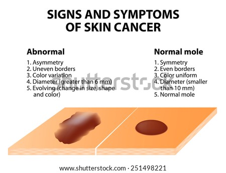 Signs and symptoms of skin cancer. ABCDE guideline - a simple and easy way to check skin for suspicious growths. - stock photo