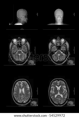Six MRI (Magnetic Resonance Imaging) images of the human brain and head - stock photo