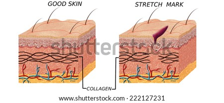 Skin anatomy diagram - comparation good skin and skin witch stretch mark.  Illustration of skin cross section showing good skin and skin with stretch mark. - stock photo