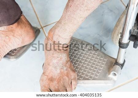 Skin disorder - stock photo