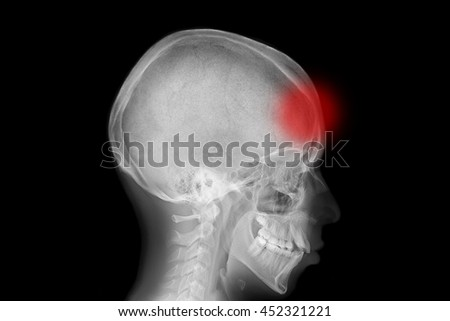 Skull with localized pain