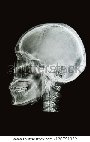 skull x-rays image  sagital plane - stock photo