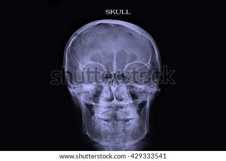 Skull Xray Stock Photo 429333541 - Shutterstock