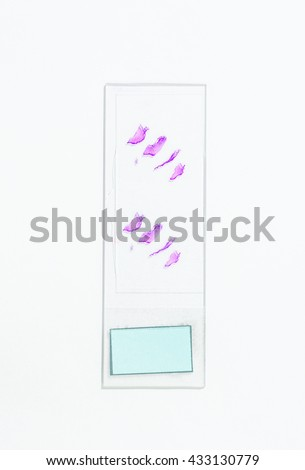 Slide tissue biopsy, LEEP and Conization for diagnosis in pathology laboratory. - stock photo