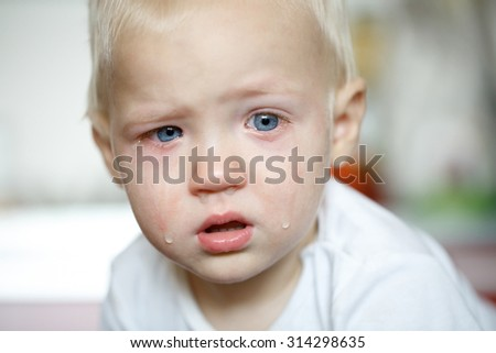 Small, crying toddler in pain with inflamed eyes. Childhood illnesses, clumsy phase, hard parenthood concept.