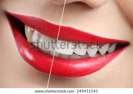 smile, teeth whitening - stock photo