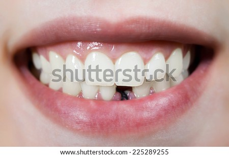 Smile without front tooth - stock photo