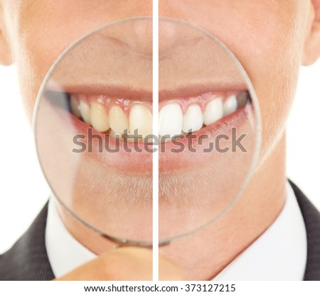 Smiling man with magnifying glass zooming on his smile, teeth: before and after concept - stock photo