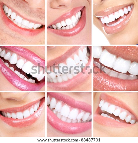 Smiling woman mouth with healthy teeth. Collage. - stock photo
