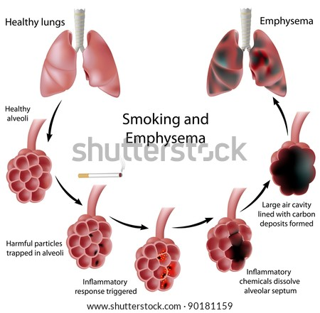 Smoking and Emphysema - stock photo