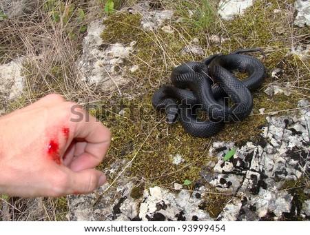 Snake Bite! Snake And Manu0027s Hand Shortly After Being Bitten (focus Centered  On Snake