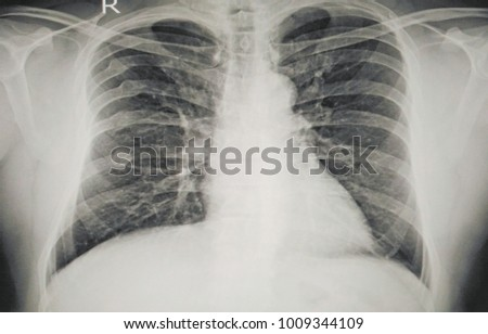 Soft and blurry Image:Medical image x-ray chest showing old broken or fracture the Right 4th to 8th ribs There is no pulmonary infiltration.Trachea,heart & mediastinum are normal.