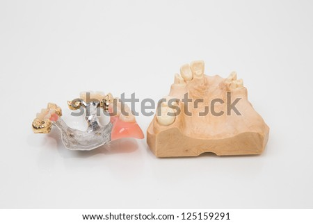 Sophisticated dental prosthesis with gold teeth, bridges and artificial teeth on a mold - stock photo