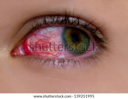 sore eye - stock photo