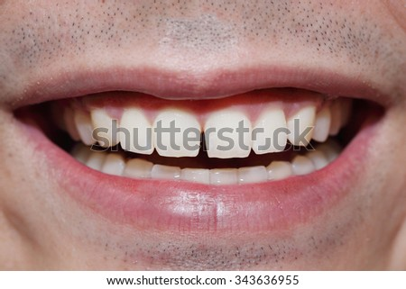 spacing between front teeth - stock photo