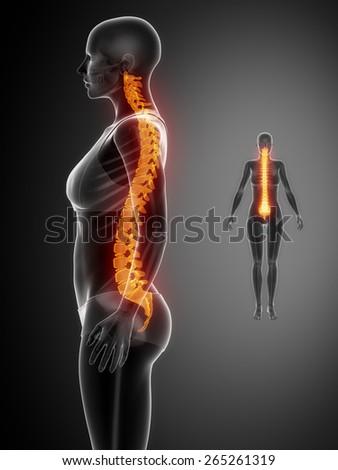 SPINE black x--ray bone scan - stock photo
