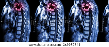 Spine metastasis ( cancer spread to thoracic spine ) ( MRI of cervical and thoracic spine : show thoracic spine metastasis and compress spinal cord ( Myelopathy ) ) ( sagittal plane )