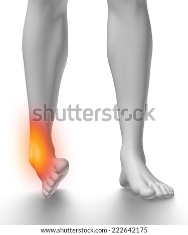 Sprained ankle on white - stock photo