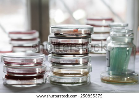 Stacks of Petri dishes with bacteria growing in them. Medical tests and research. Bacterial cultures in hospital laboratory glassware. - stock photo