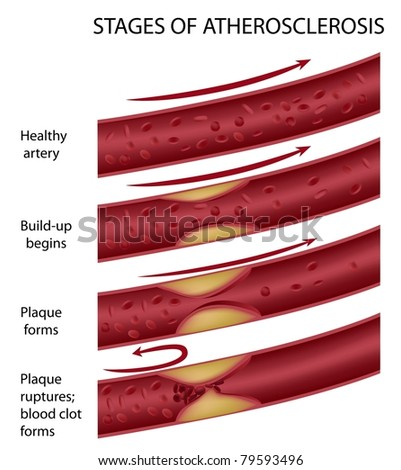 Stages of atherosclerosis - stock photo