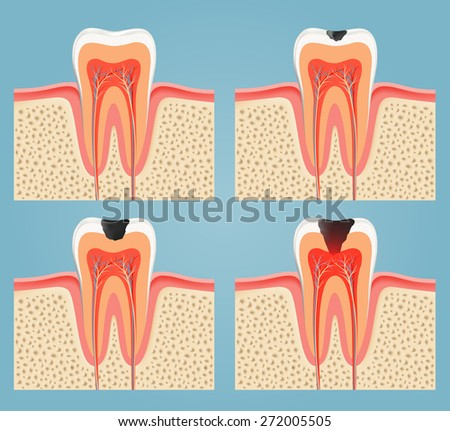 stages of tooth decay - stock photo
