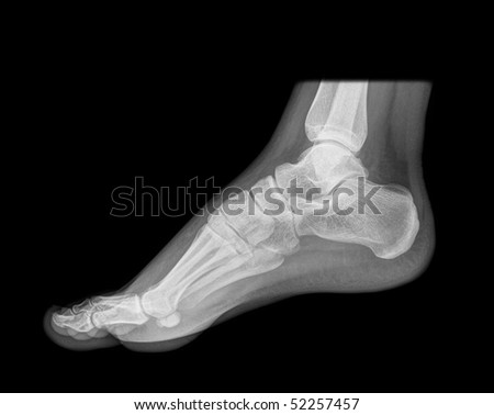 standing foot x-ray, isolated on black background - stock photo