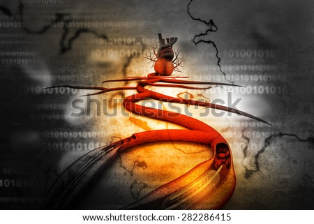 Stent angioplasty procedure with placing a balloon - stock photo